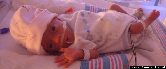 QUEBEC SMALLEST BABY