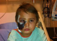 Cochrane Dog Attack: Dog Lunges, Rips Off Part Of Face Of Young Boy, Tyler LeClaire
