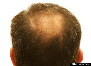 alopeciaremedios
