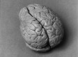 19th-Century Brain Belonged To Patient Of Famous French Physician Paul Broca, Researchers Say