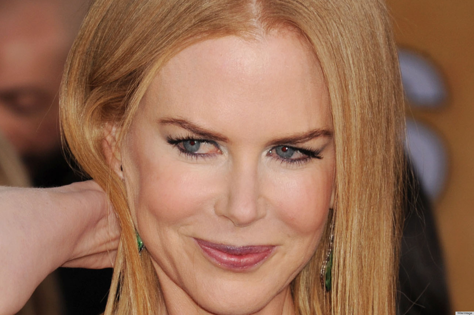Nicole Kidman Botox Unfortunate Move But Now Can