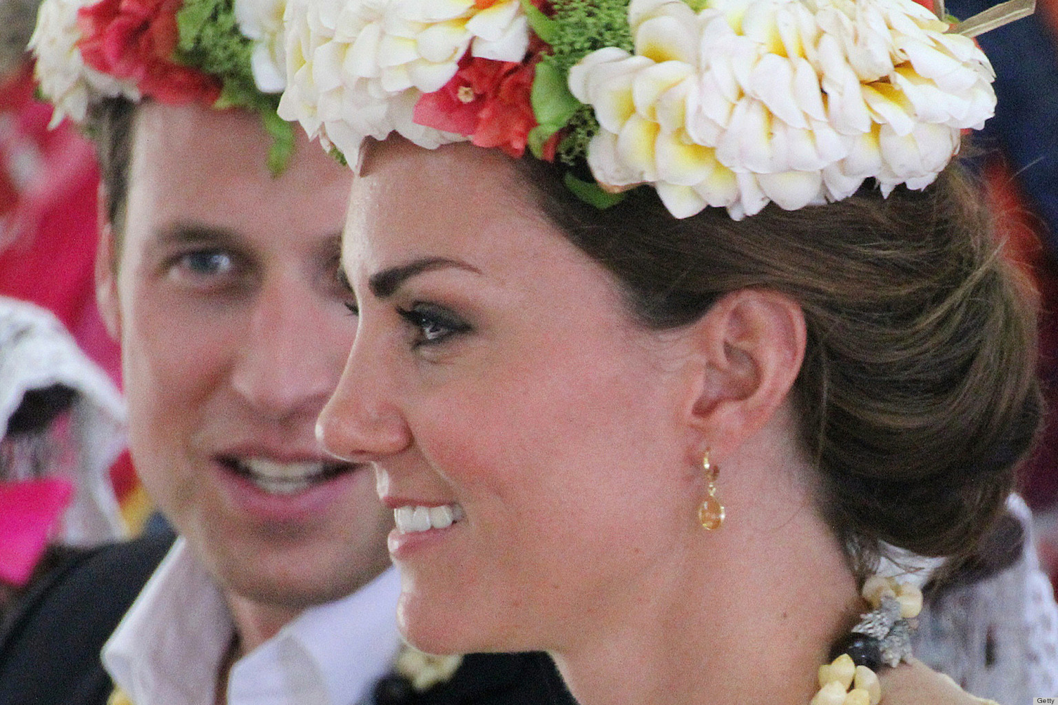 Kate Middleton S Nose Proves It She S The Perfect Woman