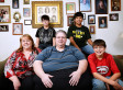 Scot Jacobson, 556-Pound Oregon Man With 70-Pound Tumor, Faces 2 Risky Surgeries