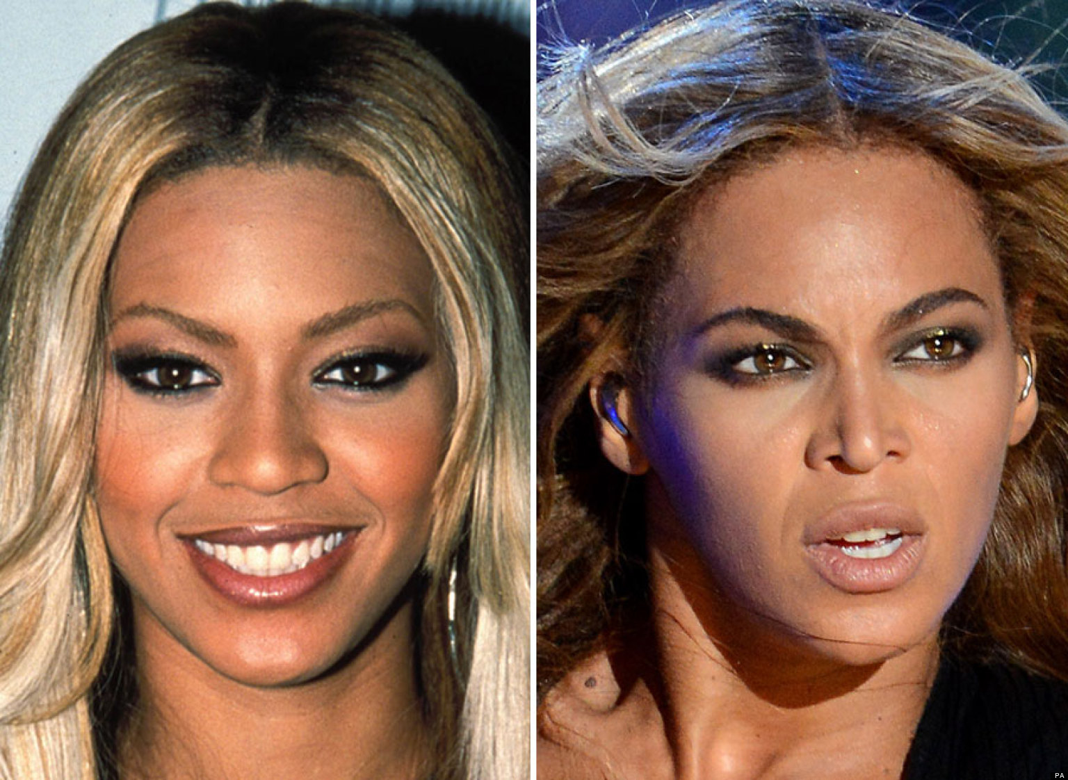 Beyoncé Nose Job: Did The Singer Really Debut New Snout At