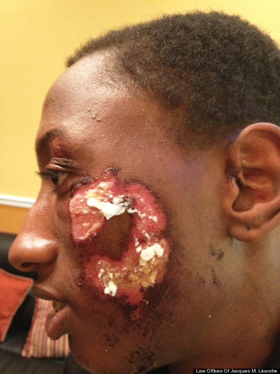 robert jackson nypd police brutality