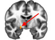 Republican Brains Differ From Democrats' In New FMRI Study